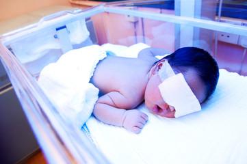 Newborn Baby Under Ultraviolet Light