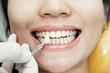 Examining teeth