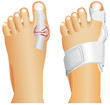 Hallux valgus, popularly known as Bunion.