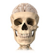 Human skull cutaway, with half brain shown on top, front view.
