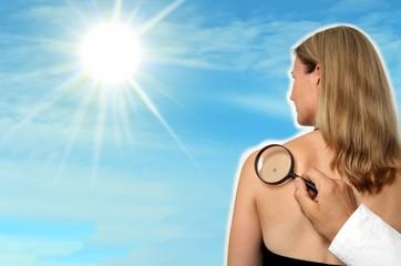 Collage Frau mit Sonne und Muttermal