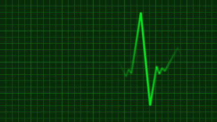EKG Animation with Background