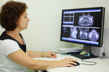 Dentist carefully looks jaw X-rays at computer monitor