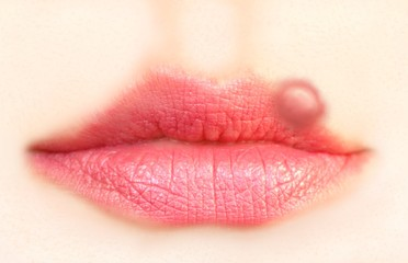 Close up of lips affected by herpes (cold sore)