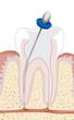 Zahnwurzelbehandlung, Endodontie 2