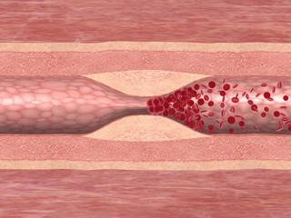 Blutgerinnsel in einer Arterie