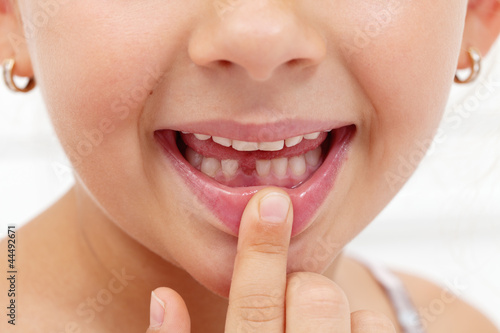 Little girl first tooth missing