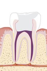 Zahnwurzelbehandlung, Endodontie 5