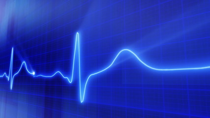 seamless loop blue background EKG electrocardiogram waveform