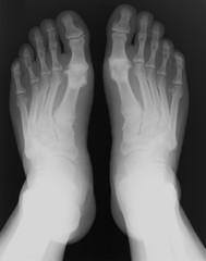 X-ray foot