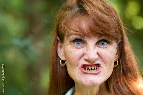 Cancer Treatment Teeth