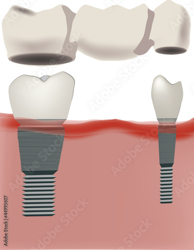 Dental implants with bridge