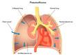 Pneumotorace
