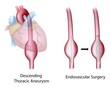 Thoracic aortic aneurysm and surgery, eps10