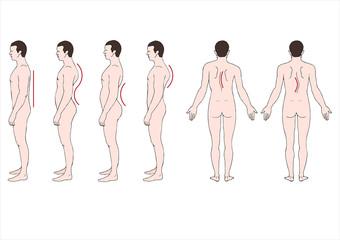 educational illustration deformstion of the spine