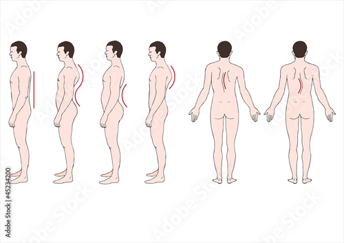 educational illustration deformstion of the spine