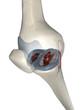 Painful knee arthritis