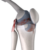arthritis of knee
