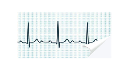 ECG paper with curled angle on white. illustration.