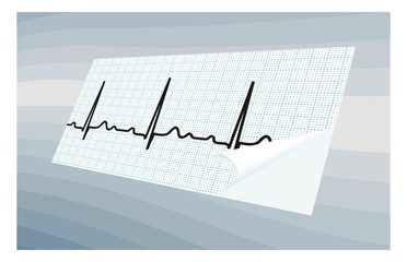 ECG  on blue abstract background.illustration.