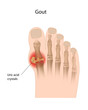 Gout of the big toe, eps10