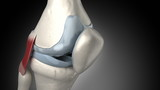Painful knee arthritis animation