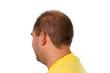 Schuetteres Haar