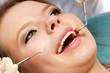 At the dentist's, closeup