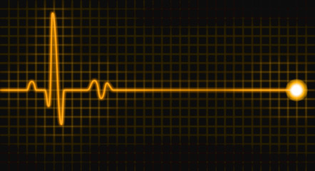 pulse graph