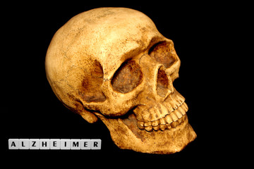 Totenkopf und Alzheimer