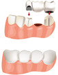 ponte dentale prima e dopo-dental bridge before and after