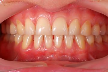 human teeth
