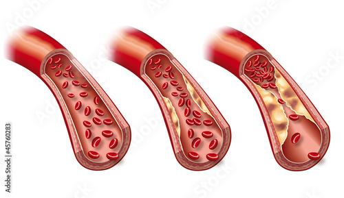 Leinwandbild Motiv Arteriosklerose