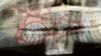 Dentista دندانساز 歯医者 Zahnarzt