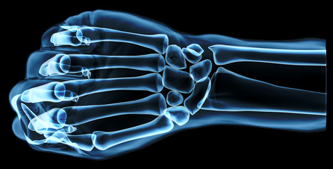 Fist under the x-rays, top view