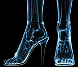 women's feet under x-ray