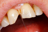 Comnposite filling tooth treatment