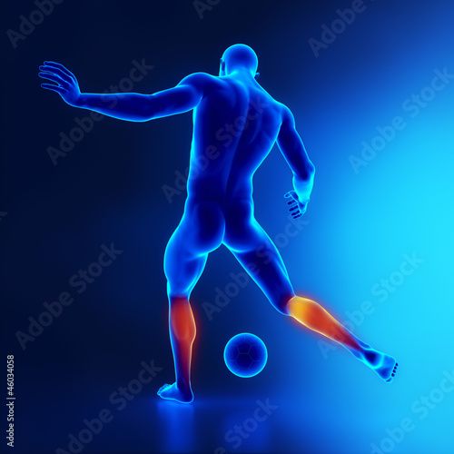 Strained calf muscle concept in x-ray