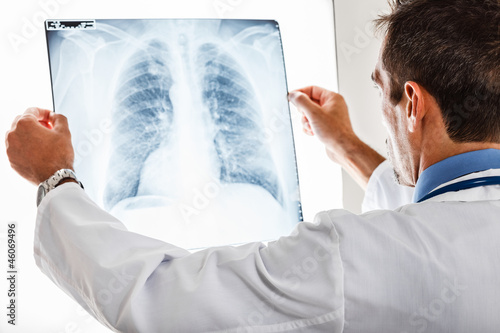 Doctor examining a radiography