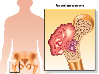 osteosarcoma femorale