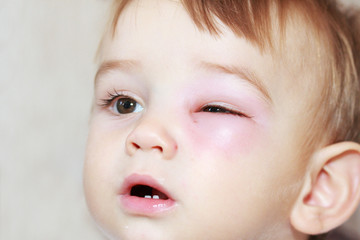 little boy - dangerous stings from wasps near the eye