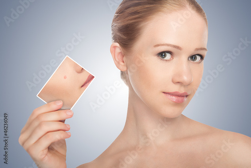 concept skincare . Skin of beauty young woman before and after t