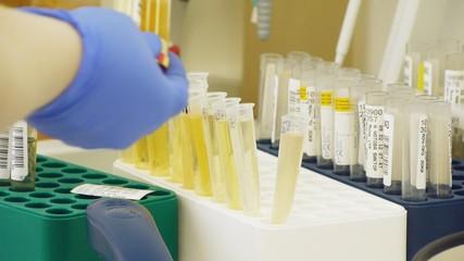 Laboratory analysis of the urine and blood