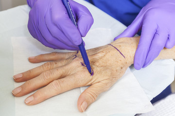Plastic Surgeon Marking Woman's Hand for Surgery