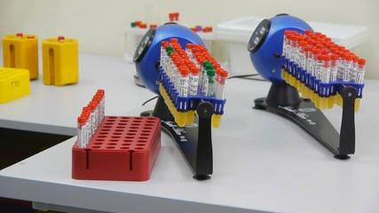 Laboratory analysis of urine