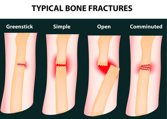 Typical bone fractures