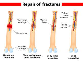 Fracture and repair. Vector scheme.