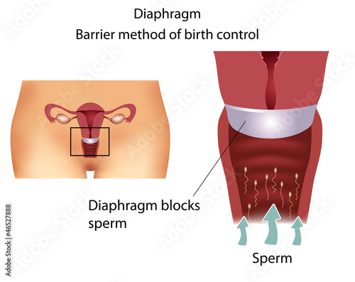 Barrier contraceptive method- Diaphragm