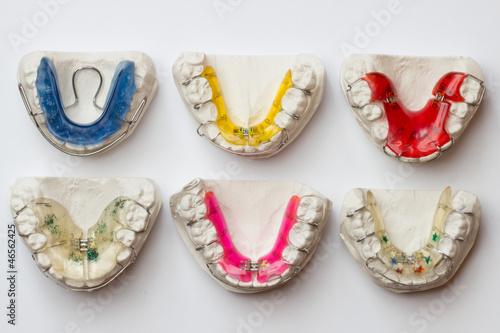 bunte Zahnspangen in Abdruckformen