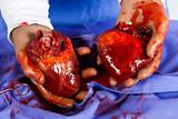 Heart transplant operation poster